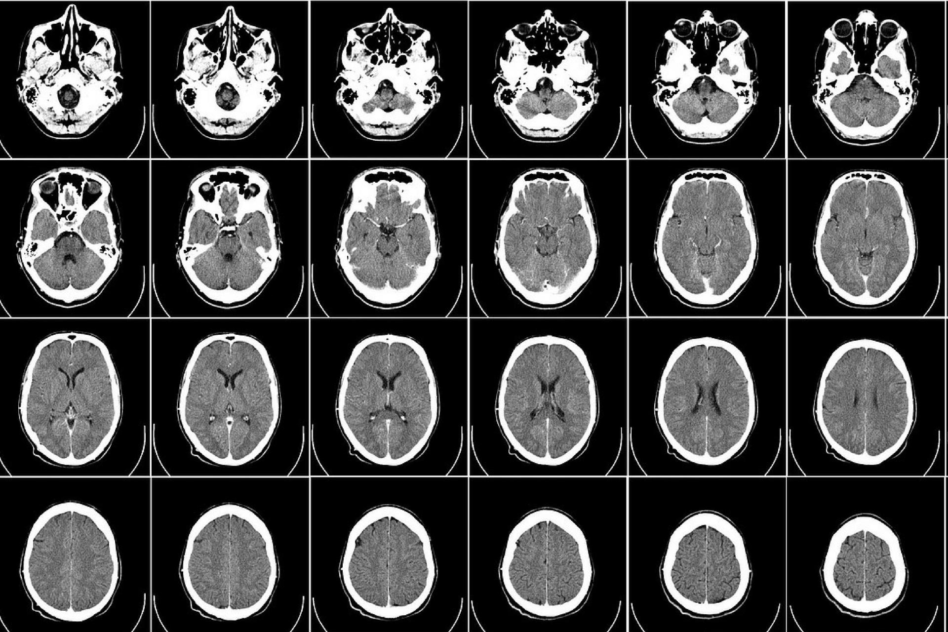 traumas na cabeça aumentam o risco de Parkinson